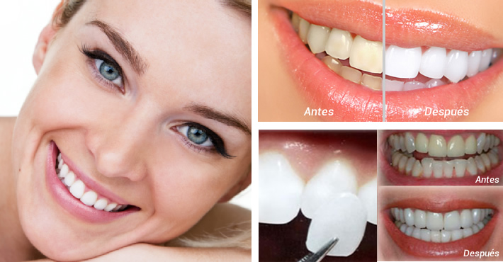 Pestaña estetica dental