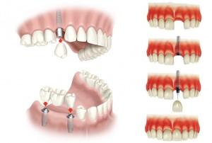 Pestaña implantologia